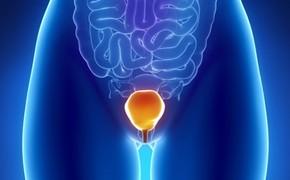 Cordycepin zabíjí buňky rakoviny močového měchýře